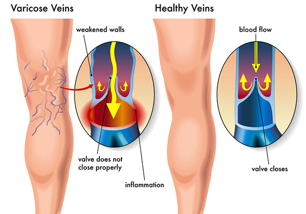 Varicose Veins Ulcers Natural Treatment